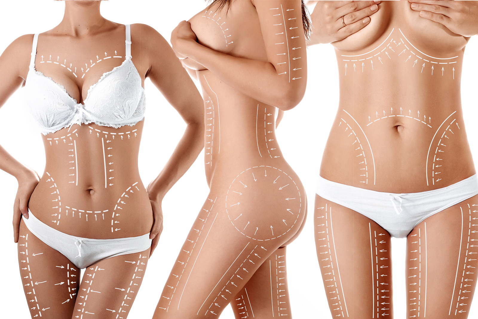 Why Is Liposuction The Second Most Popular Cosmetic Surgery Moller Medical Blog